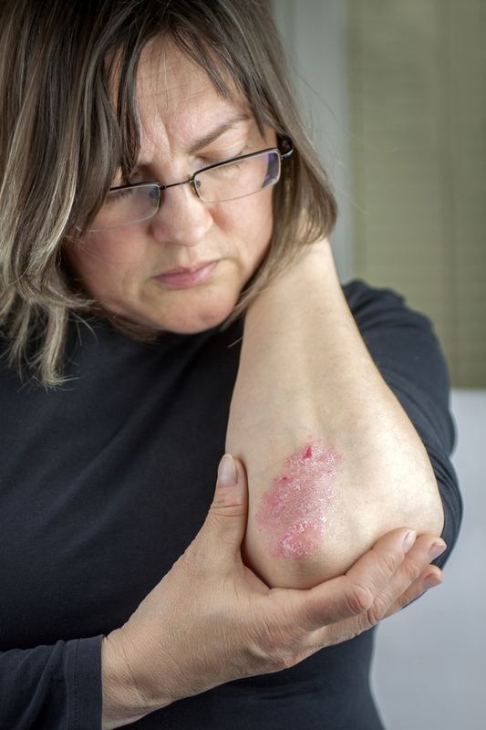 Photo of a woman with psoriasis on her elbow