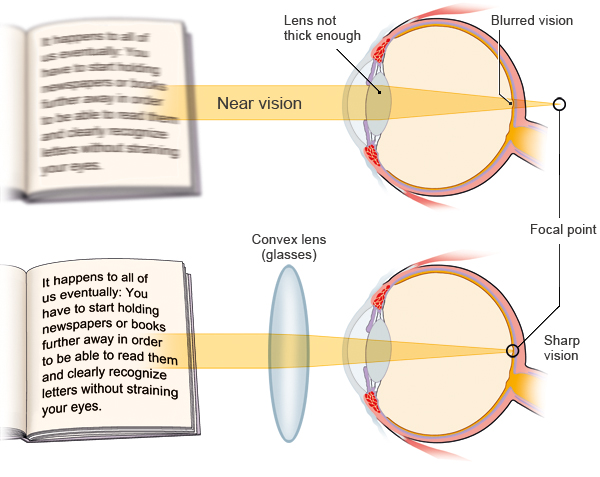 Illustration: Correcting presbyopia – as described in the article