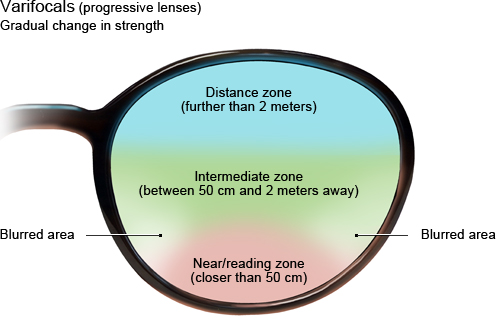 Illustration: Varifocals (progressive lenses) with gradual change in strength