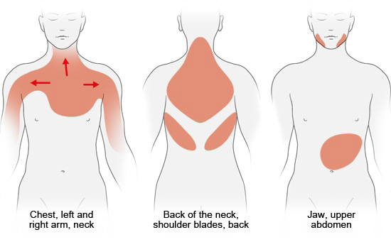 Illustration: Possible areas of pain during a heart attack – as described in the information