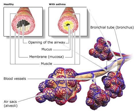 Illustration: Structure of the airways in the lungs arrowed by asthma as described in the article