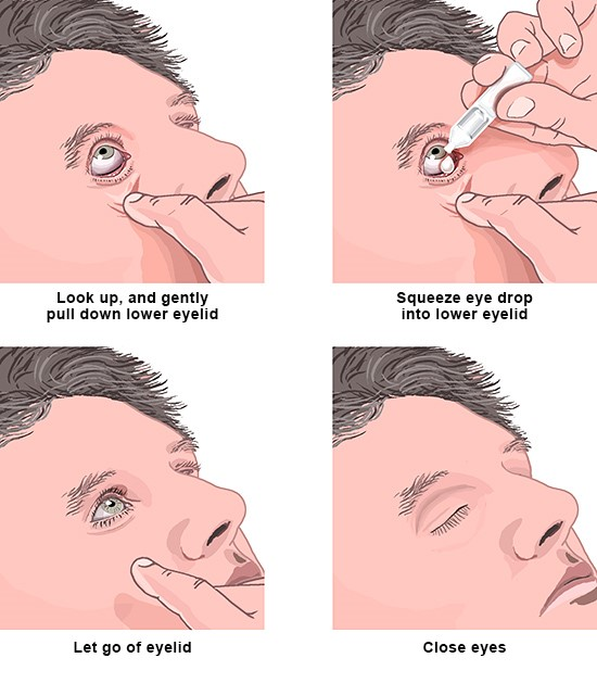 Tips for applying eye drops