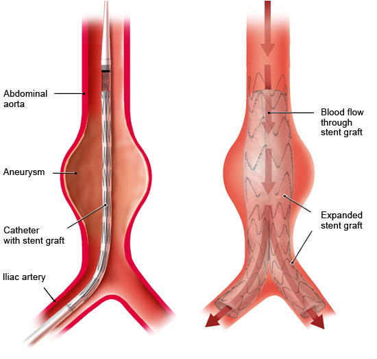 Illustration: Endovascular surgery with stent graft