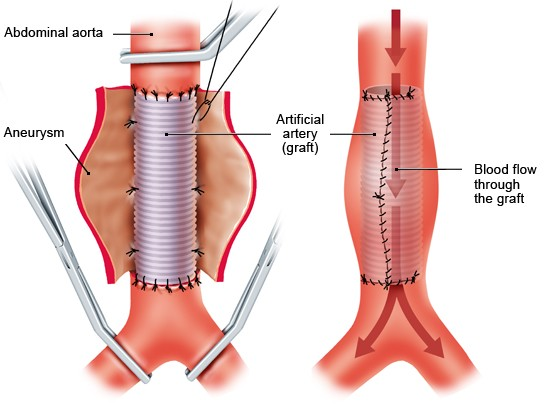 Illustration: Open surgery: The aneurysm is replaced by an artificial vessel (graft)