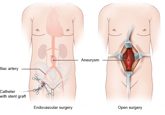 Illustration: Surgical techniques for abdominal aortic aneurysm