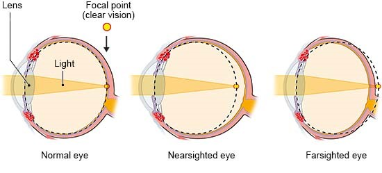 Illustration: Refractive errors in nearsightedness and farsightedness