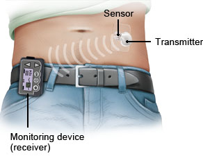 Illustration: CGM system: Continuous glucose monitoring in transcutaneous tissue – as described in the article