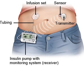 Illustration: CGM system with an insulin pump – as described in the article