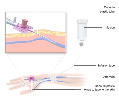 Illustration: Chemotherapy: Infusion in a vein