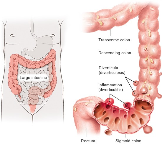 illustration: diverticula and diverticulitis - as described in the article