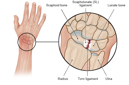 Illustration: Torn ligament in the wrist