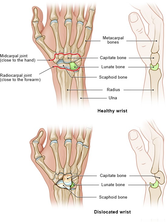 Illustration: Healthy wrist and dislocated wrist