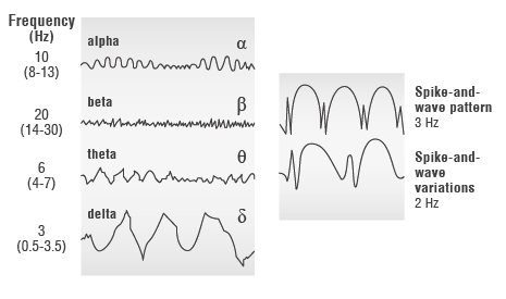 Illustration: Normal EEG waves (left) and the spike-and-wave pattern in epilepsy (right)