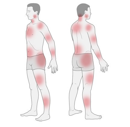 Illustration: Possible painful areas in fibromyalgia – as described in the article