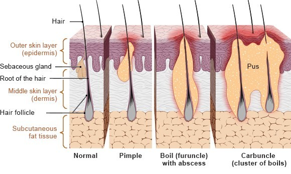 Illustration: Different types of hair follicle infections – as described in the article