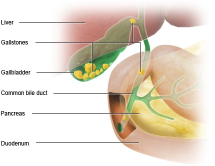 Illustration: Gallstones – as described in the information