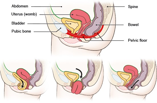 Illustration: Above: normal position of organs in the abdomen; Below: left: bladder prolapse, middle: uterine prolapse, right: posterior vaginal prolapse (rectocele)