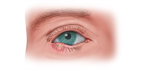 Illustration: Stye on the lower eyelid
