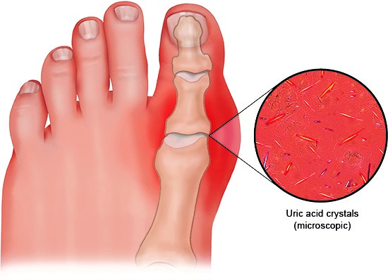 Illustration: In gout, tiny uric acid crystals build up in the body, mainly in the joints