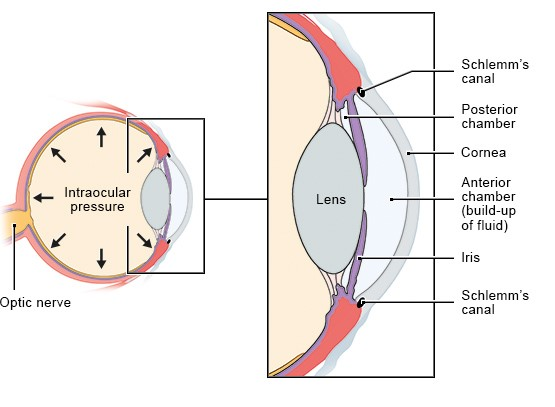 Illustration: Glaucoma