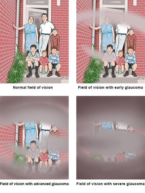 Illustration: Possible effects on field of vision