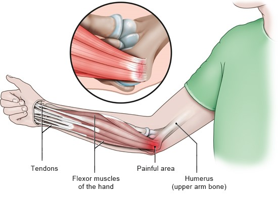 Illustration: Painful areas in golfer's elbow – as described in the article