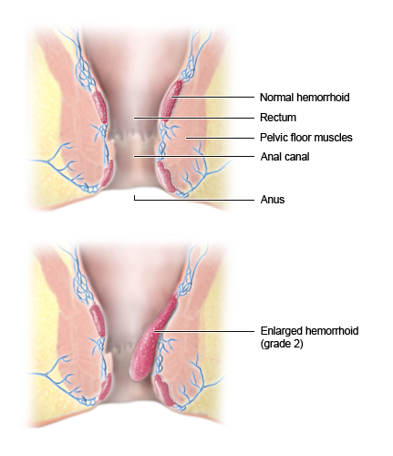 Hemorrhoid tissue, cross-section view: normal and enlarged - as described in the article