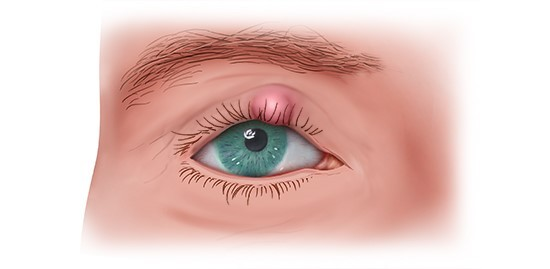 Illustration: Chalazion on the upper eyelid