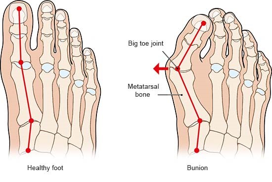 Illustration: Healthy foot and bunion – as described in the article