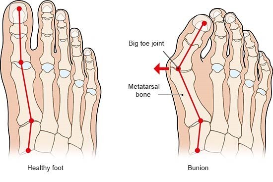 Illustration: Healthy foot and a bunion – as described in the article
