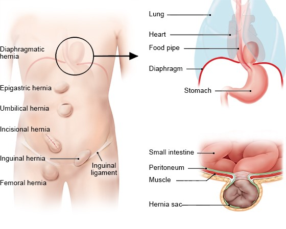 Illustration: The most common types of hernia