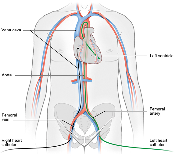 Illustration: Right and left heart catheterization, depicting the catheter reaching the heart with respective entry points