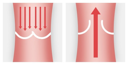 Illustration: The curved flaps ensure that the blood flows in only one direction