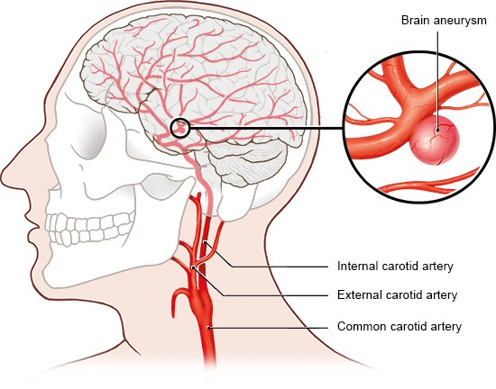 Illustration: Brain aneurysms are often located in the middle of the brain