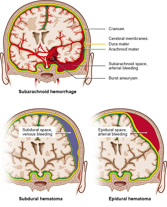 Illustration: Different types of bleeding in the brain