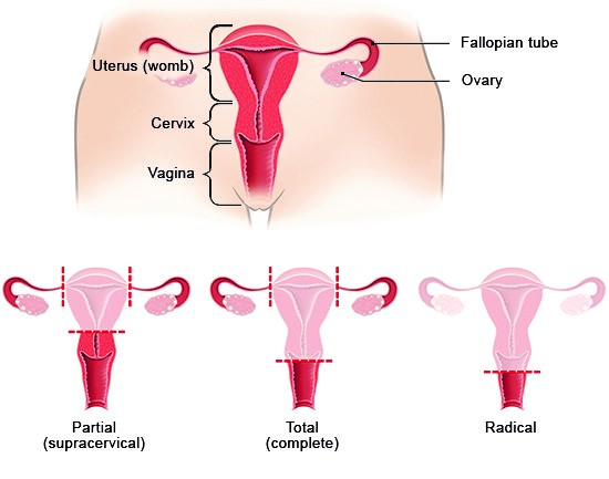 Illustration: Types of hysterectomy – as described in the article
