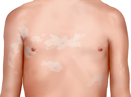 Illustration: Tinea versicolor on the upper body – as described in the information
