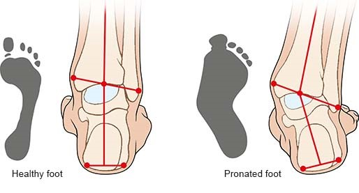 Illustration: Healthy foot and pronated foot – as described in the article