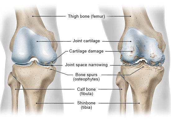 Illustration: Front view of the right knee; on the left with osteoarthritis on one side of the knee joint (medial), on the right with advanced osteoarthritis on both sides of the knee joint (medial and lateral) – as described in the article