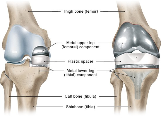 Illustration: Front view of the right knee; Left: Partial knee replacement; Right: Total knee replacement – as described in the article