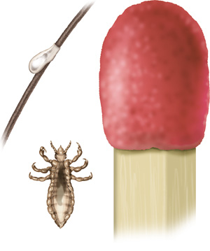 Illustration: Smaller than the head of a match: adult louse and nit