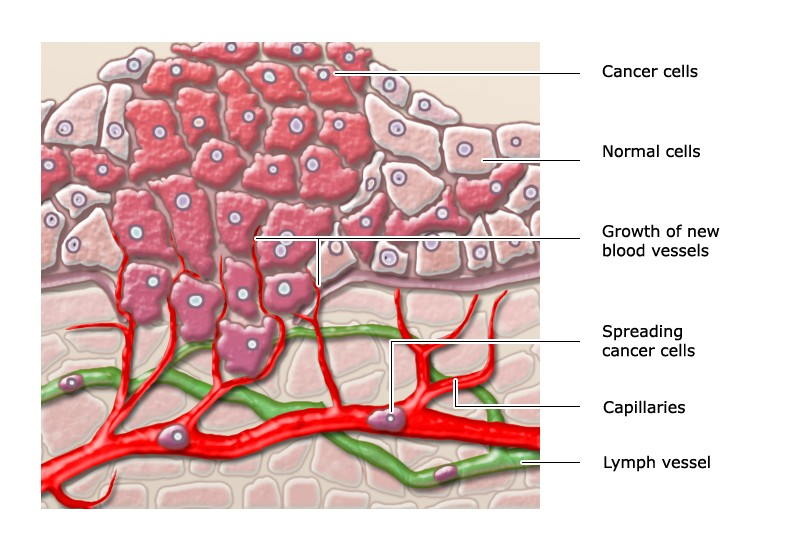 Illustration: Invasive cancer