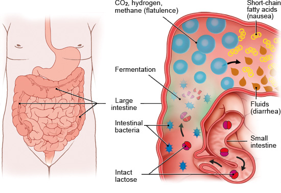 Illustration: Digestion with lactose intolerance – as described in the article
