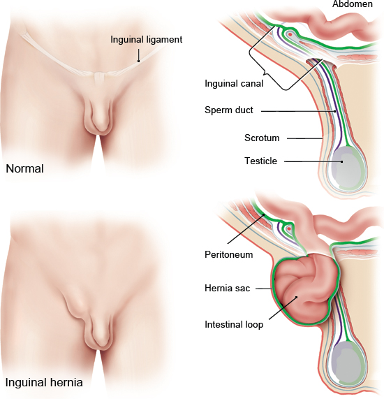 Illustration: Inguinal hernia: The weak point in the inguinal canal