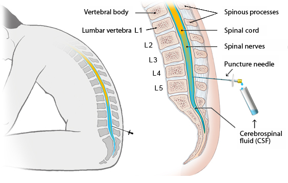 Illustration: Lumbar puncture in the lumbar (lower back) region of the spine – as described in the article