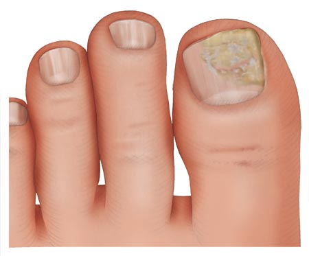 Illustration: Nail fungus on the big toenail