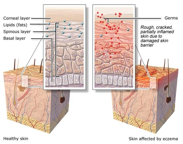 Illustration: Healthy skin and skin affected by eczema - as described in the article