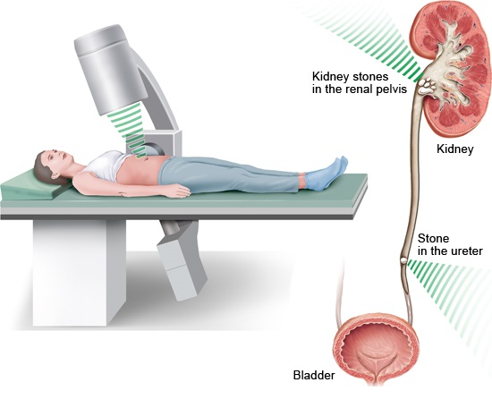 Illustration: During shock wave therapy – as described in the article