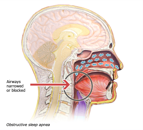 Illustration: Obstructive sleep apnea – as described in the article