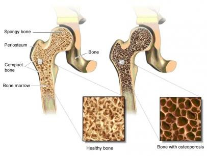 Illustration: Healthy bone tissue (left) and fragile bone tissue due to severe osteoporosis (right) – as described in the article
